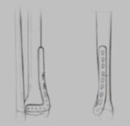 Placa antero-interna para fracturas de pilón tibial