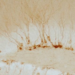 Neuronas Jovenes en adulto (Hipocampo)